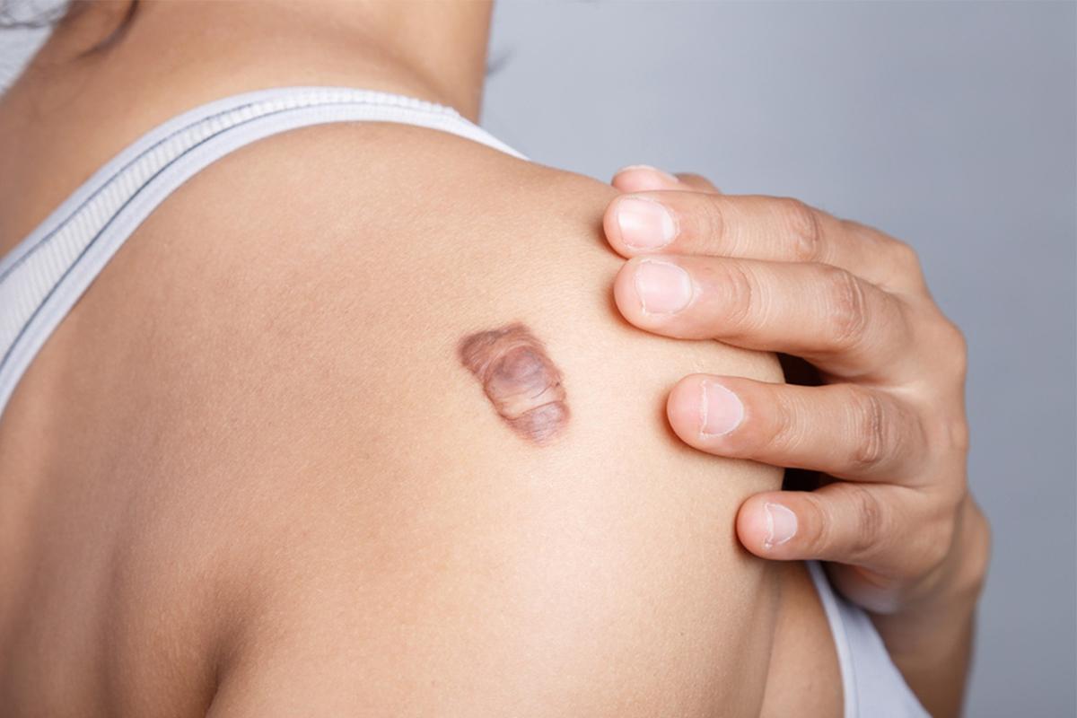 Keloids Treatment - Hong Plastic Surgery
