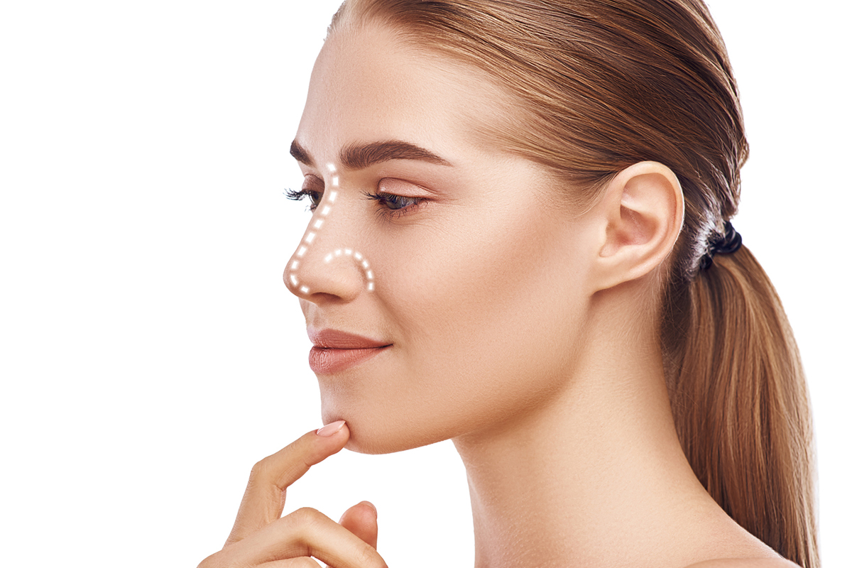 Augmentation Rhinoplasty - Rhinoplasty- Nose Job - Hong Plastic Surgery