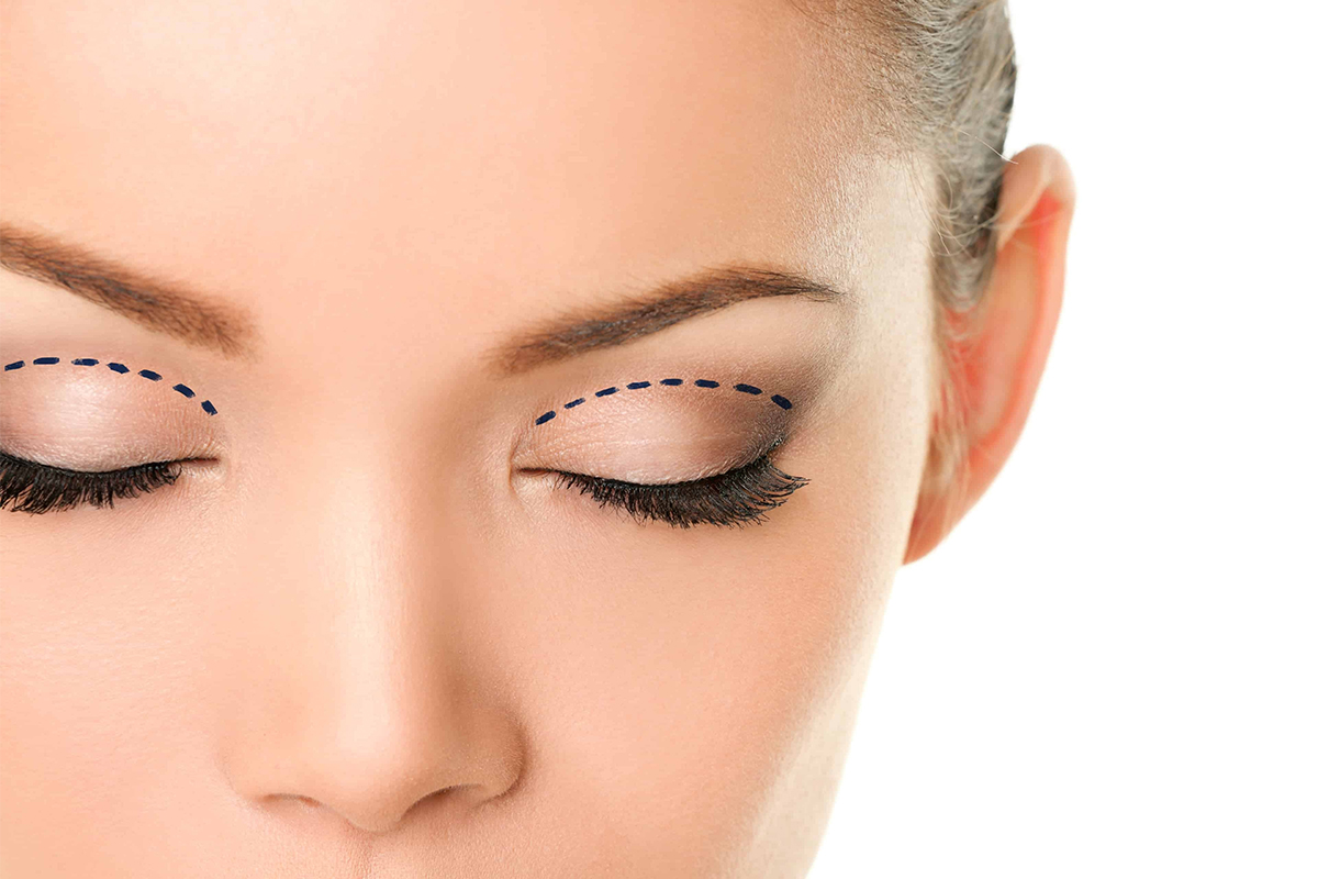 Browlift - Eyelid Lift - Hong Plastic Surgery