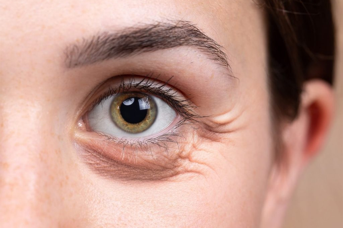 Eye bag Removal Surgery - Hong Plastic Surgery