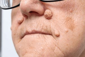 Intradermal nevus treatment - Hong Plastic Surgery