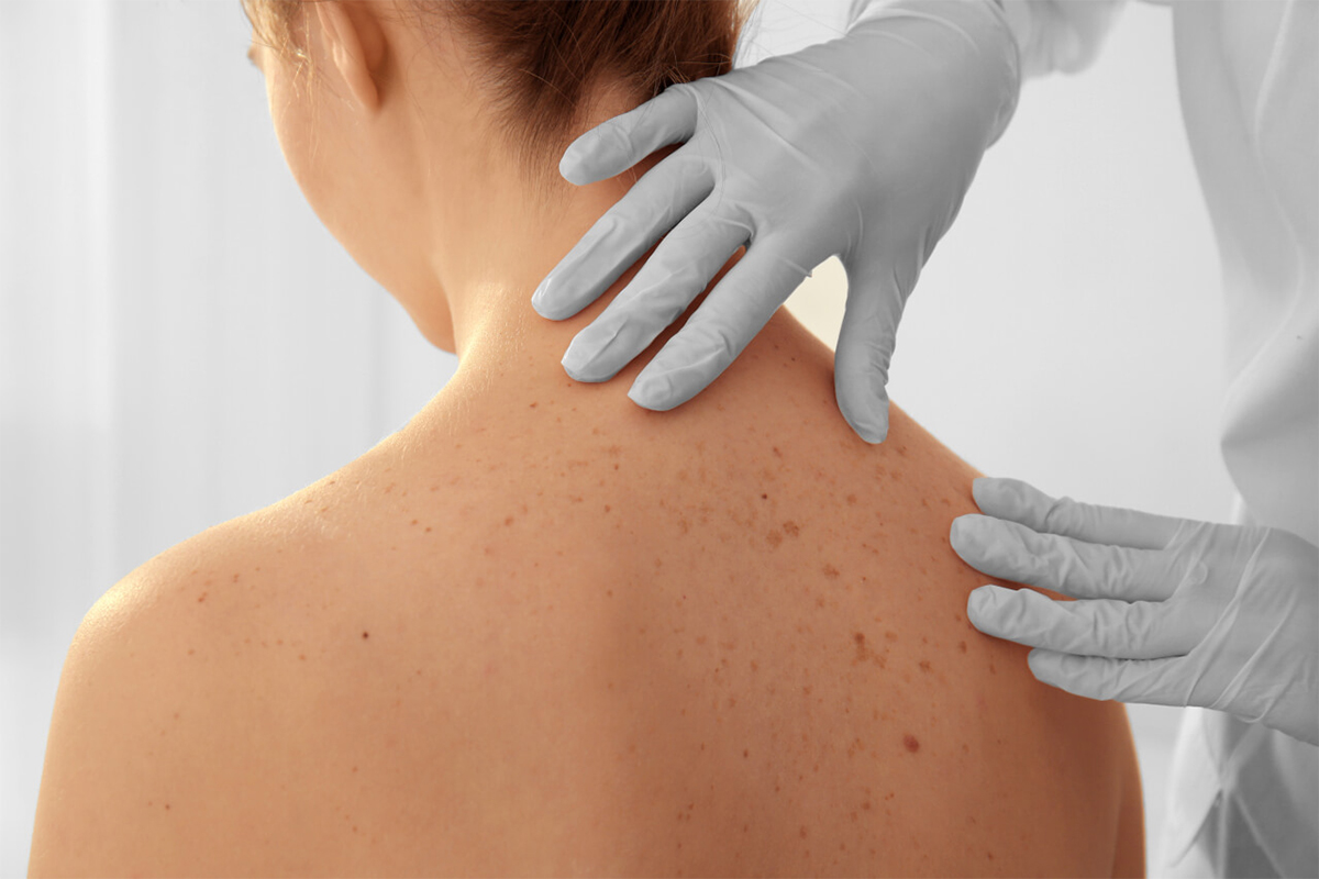 Skin Cancer Diagnosis & Treatment - Hong Plastic Surgery