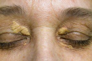 Xnthelasma Eyelids Treatment - Hong Plastic Surgery