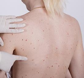 Skin Lesion Treatment - Hong Plastic Surgery